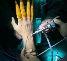 Artroscopia-muneca03